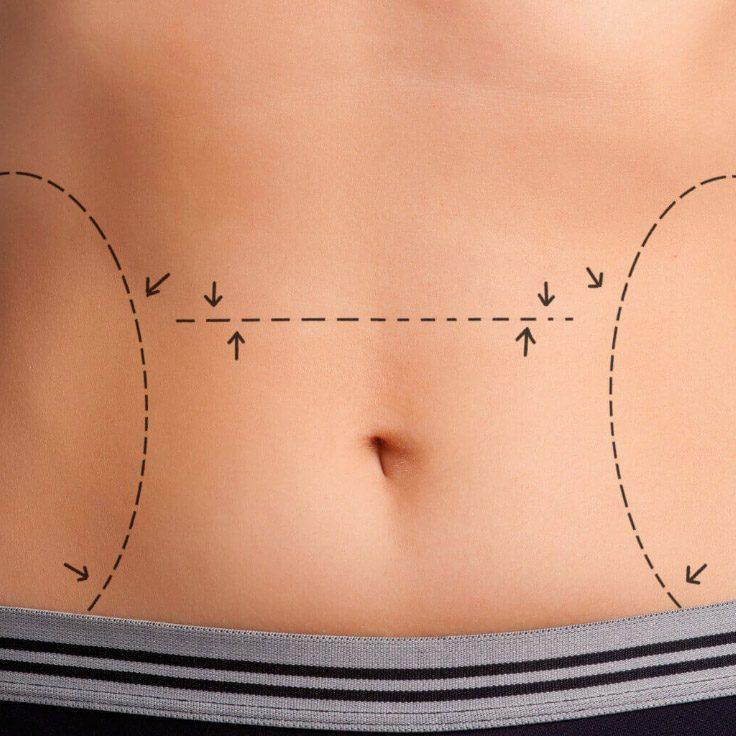 abdominoplasty-bg